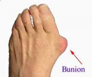 foot bunion adelaide Physiotherapist